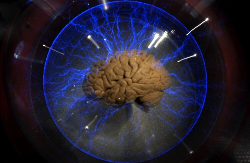 Mees elas kenasti, aju asemel kolp peamiselt vedelikku täis