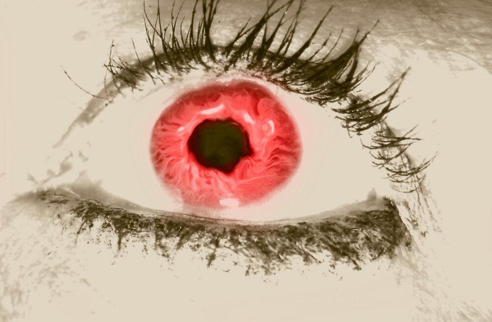 Mis on punane silm ja kuidas seda vältida