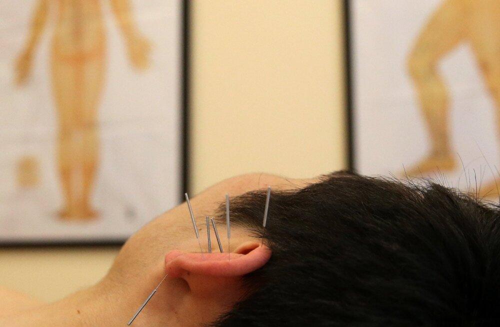 Akupunktuur