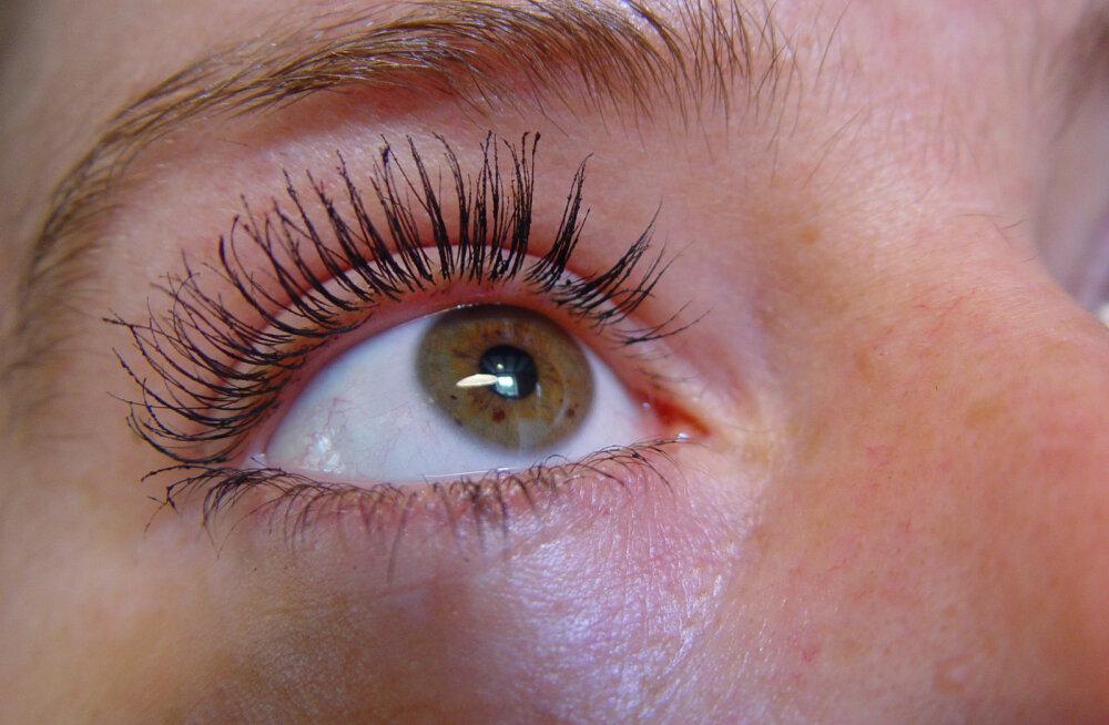 Ettevaatust, silmapõletik nakkab kergesti!