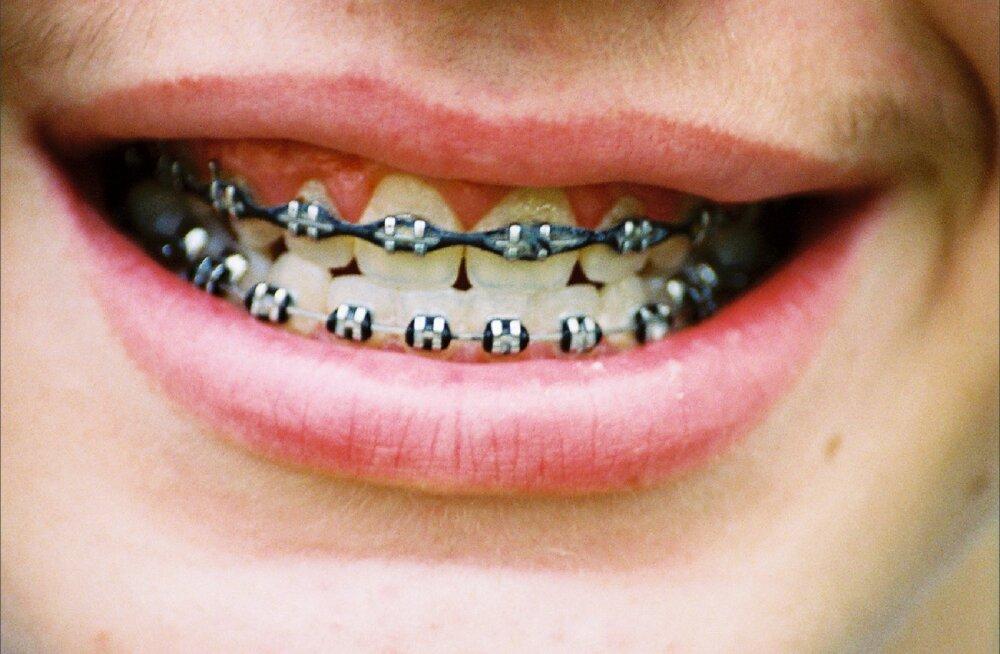 Puseriti või viltused hambad: kelle juurde pöörduda või kust abi otsida?