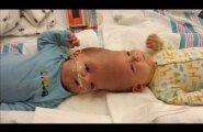 Üliriskantne operatsioon õnnestus! Peadpidi kokku kasvanud beebid on edukalt lahutatud