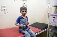 Tsiviilelanike sihilik tapmine võib olla sõjakuritegu, nentisid välisministrid oma hambutus avalduses. Pildil Vene õhurünnakus kannatada saanud Aleppo poiss