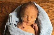 GALERII: Isa jagas fotosid oma üliraskelt haige poja esimestest (ja viimastest) elupäevadest — mida oma elu eest võitleva beebi vanemad tegelikult tunnevad?