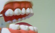 """Terviseamet hoiatab isehakanud """"spetsialistide"""" eest: hammaste valgendamisel usalda hambaarsti"""