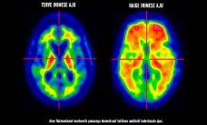 Эстонские врачи привезли из Америки новый метод ранней диагностики деменции