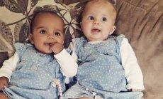 Haruldane looduse temp: kas sina suudad uskuda, et need beebid on kaksikud?