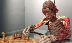 Скандальный анатомический музей открылся в Гейдельберге