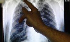 Miks mõne suitsetaja kopsud ikkagi terveks jäävad? Põhjus on nüüd leitud