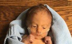 GALERII: Isa jagab fotosid oma üliraskelt haige poja esimestest elupäevadest — mida oma elu eest võitleva beebi vanemad tegelikult tunnevad?