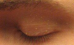 Miks ilmuvad näole valged tähnid ning kuidas neist lahti saada?