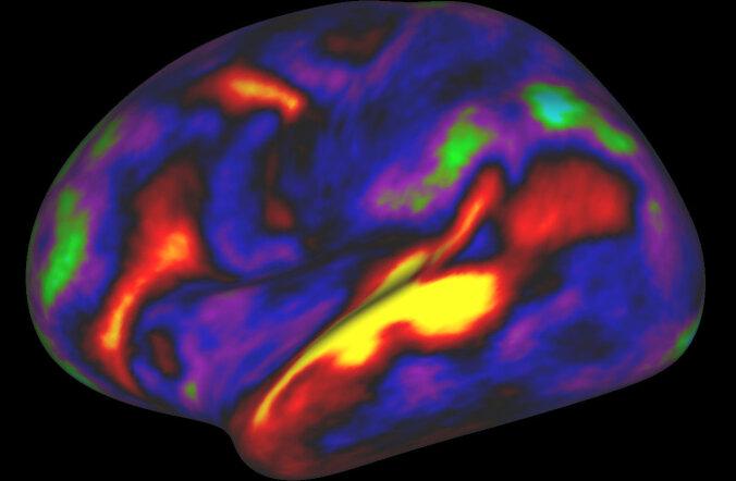 Läbimurre: rahvusvaheline teadustiim leidis valgu, mis võib polüskleroosihaiged tervenemise teele aidata