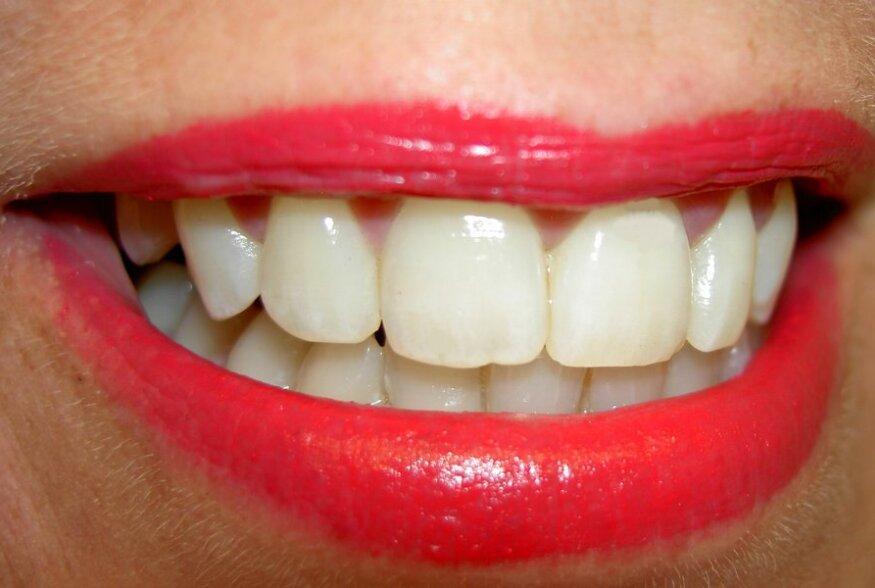 ARST SOOVITAB | Mida süüa, et hoida hambad tervena?